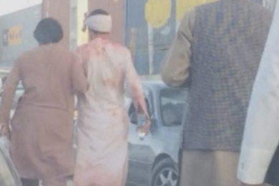 Afghanistan attacco suicida all'aeroporto di Kabul. Sarebbero almeno 13 le vittime dell'attacco. Tra questi ci sarebbero dei bambini.